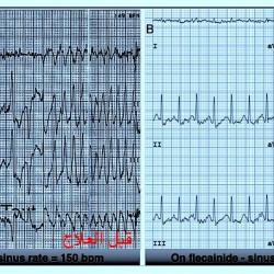 نشر بحث سعوديتان عن علاج أحد اضطرابات القلب في مجلة مرموقة